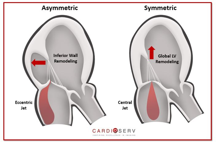 Secondary MR: Evaluating Mitral Valve Tethering