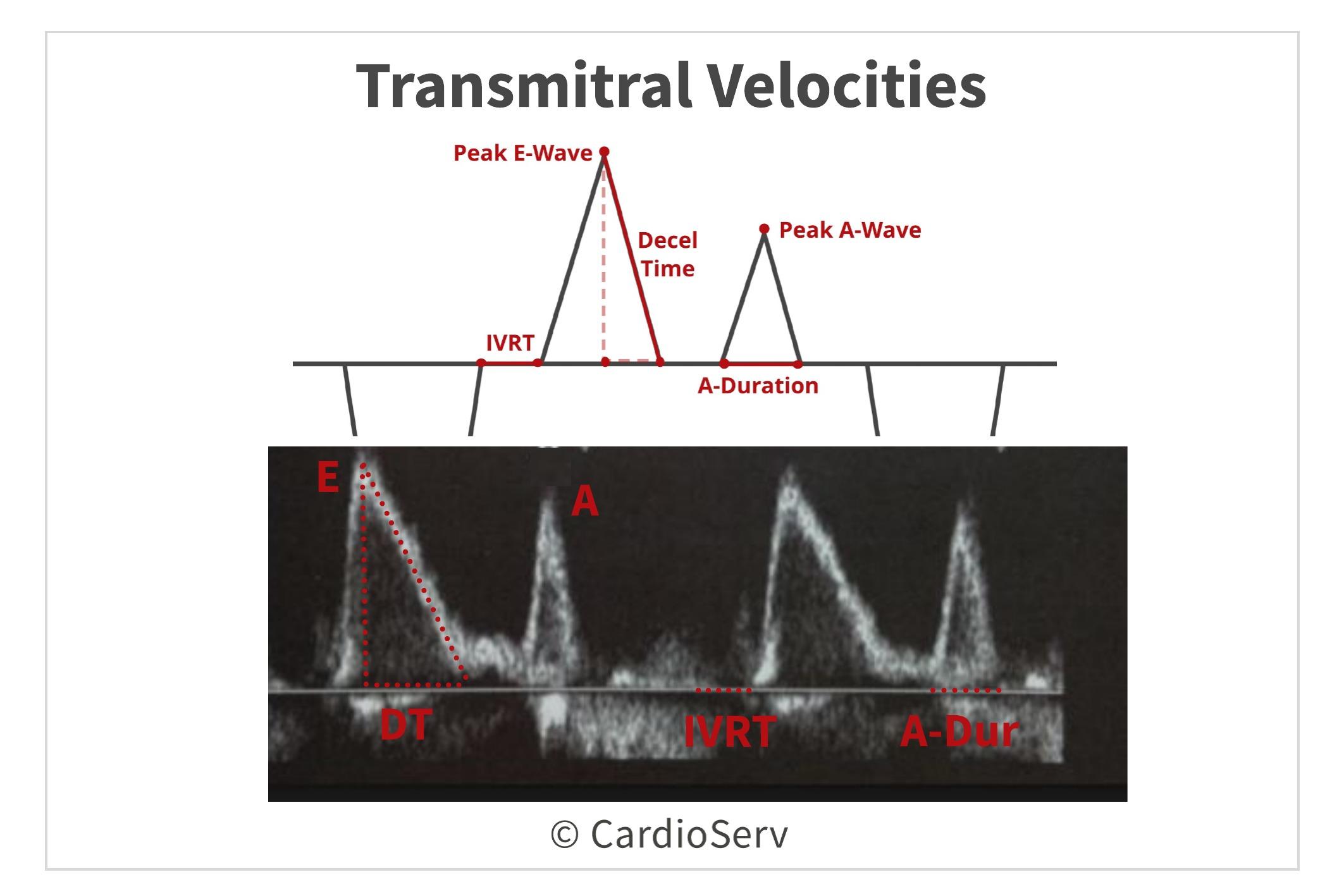Transmitral Flow Velocities Diastolic Function Mitral Inflow