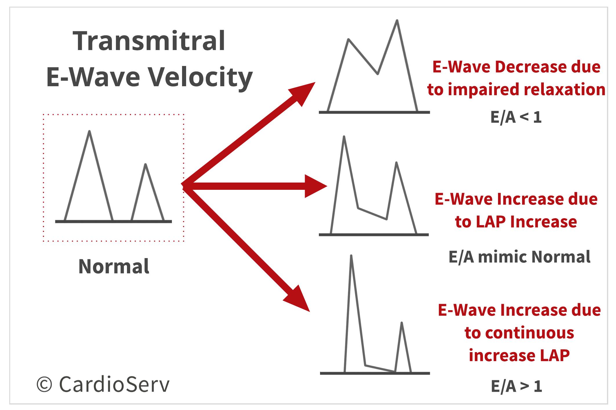 Transmitral E-Wave Velocity