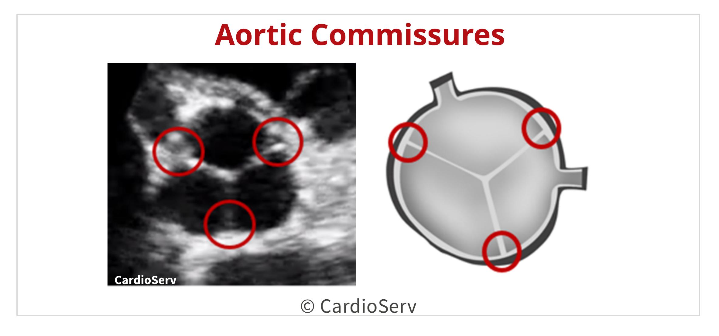 Aortic Valve Commissures Echo