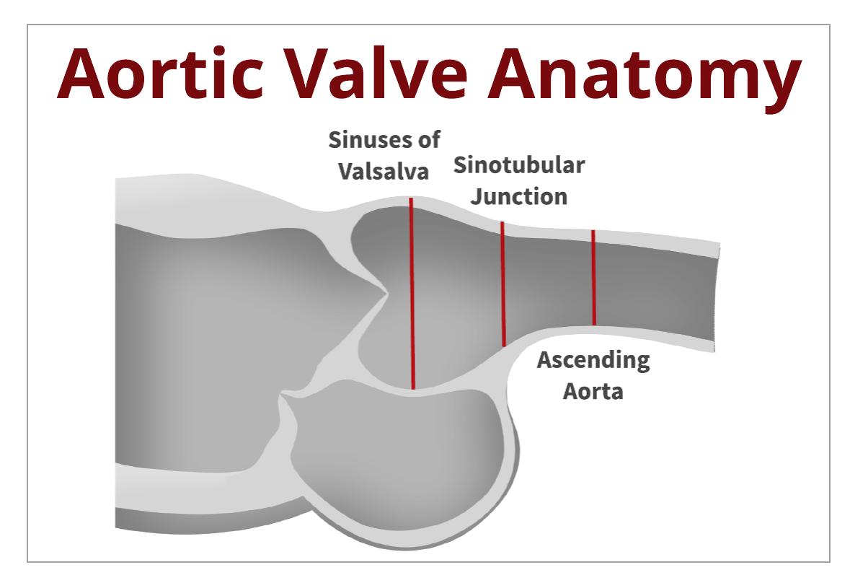 Back to the Basics: Aortic Valve Anatomy