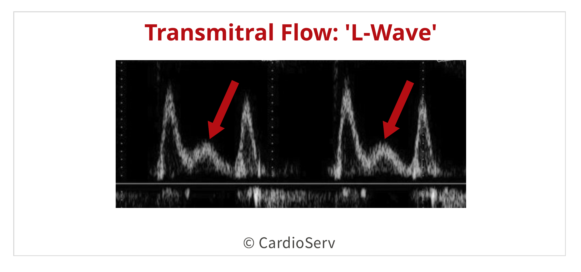 Transmitral L Wave Waveform Diastolic Dysfunction