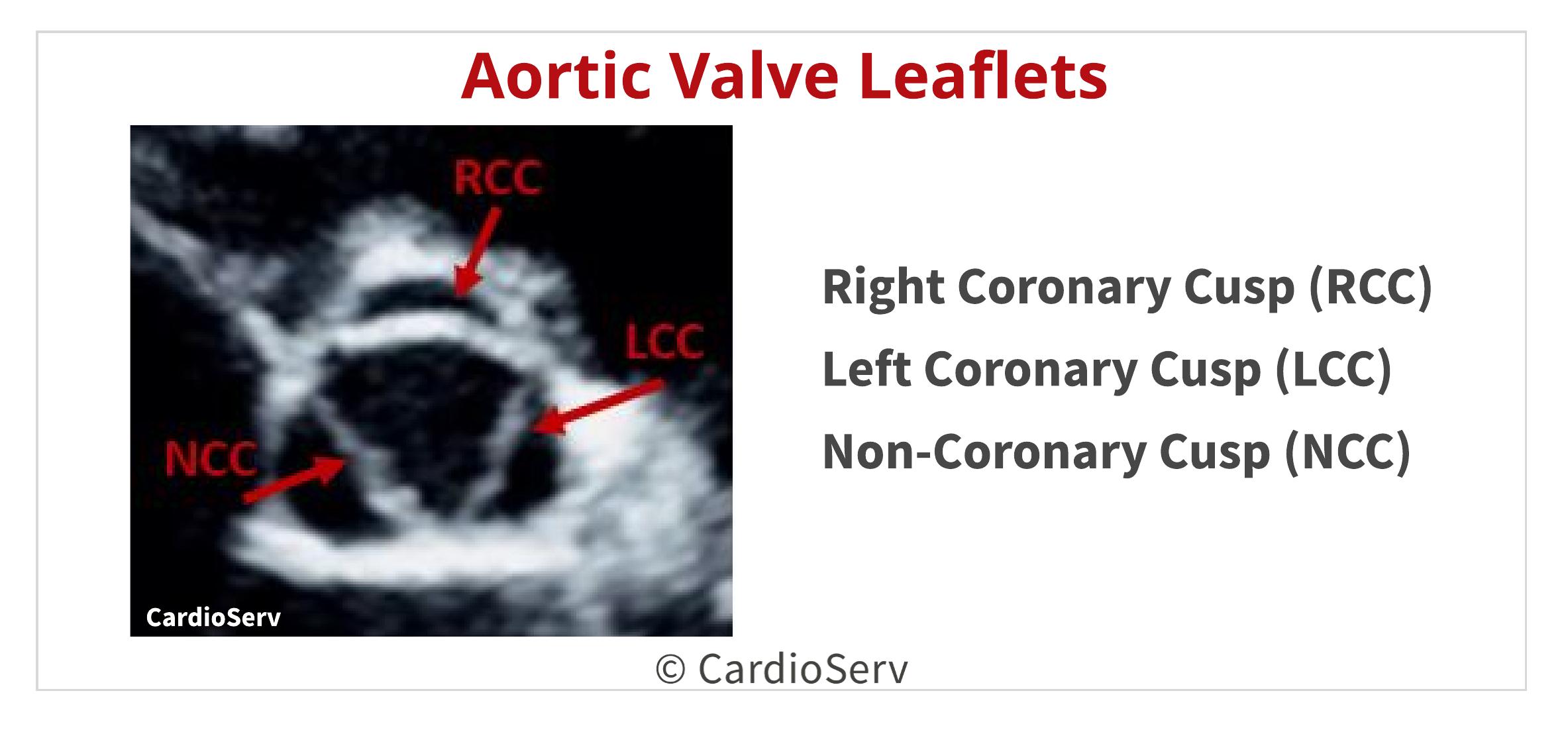 Aortic Valve Leaflet Cusp Echo