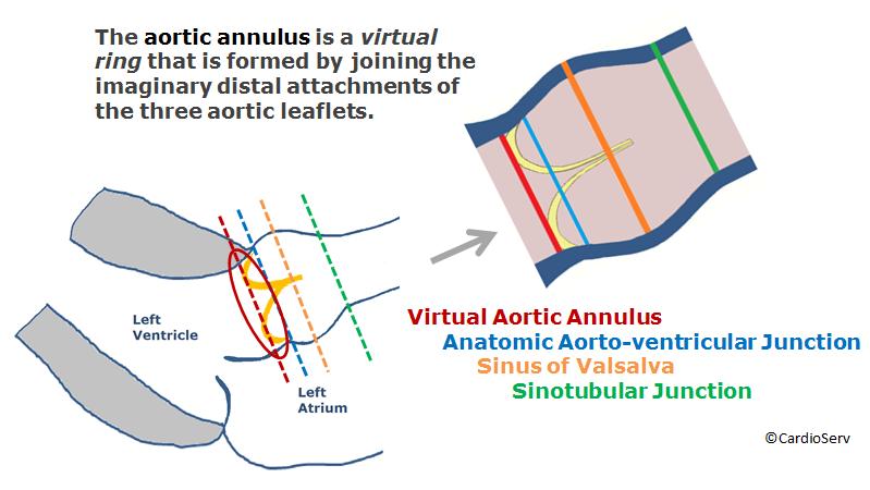 aortic annulus virtual ring