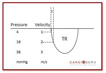 TR Velocity