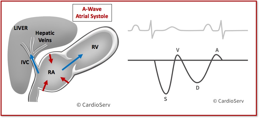 Hepatic Vein Waveform Doppler A-Wave