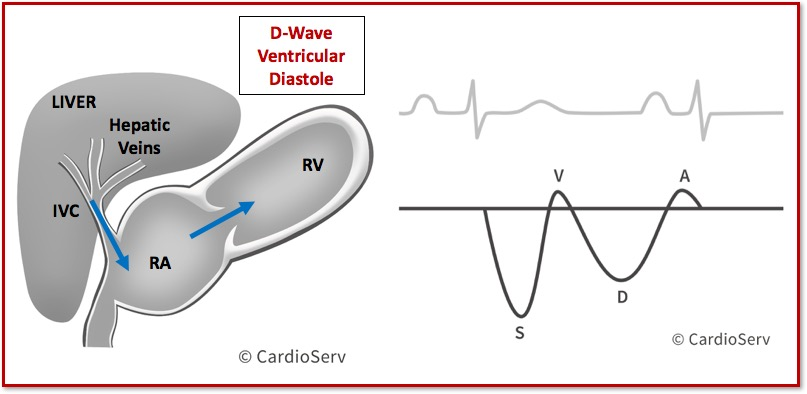 Hepatic Vein Waveform Doppler D-Wave