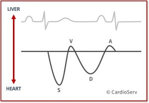 Hepatic Vein Waveform