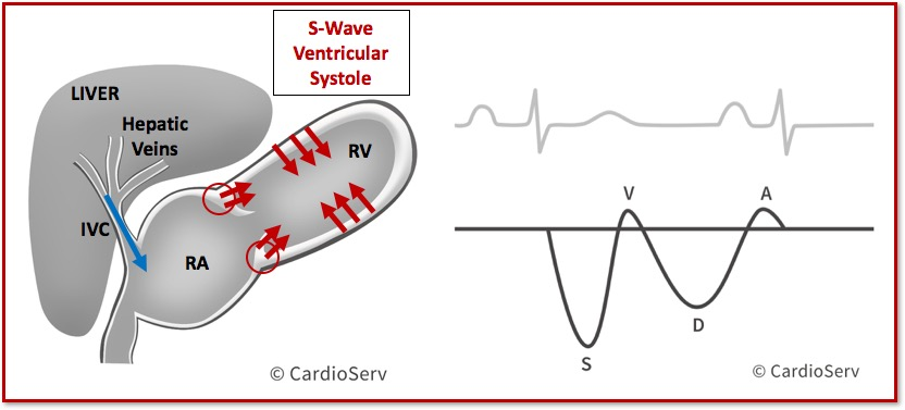 Hepatic Vein Waveform Doppler s-Wave