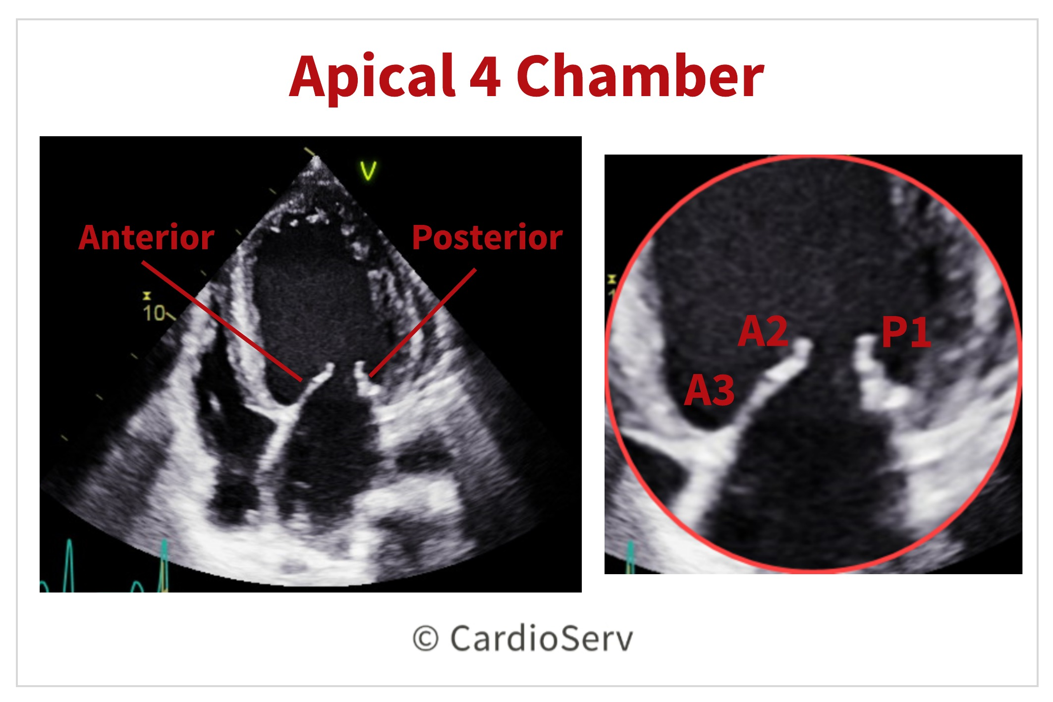 Apical 4 Chamber AP4 Mitral Valve Scallops Echo