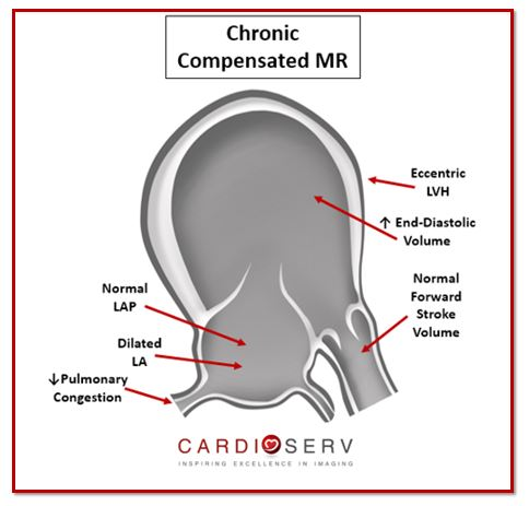 Chronic Compensated MR Echo Sonographer View