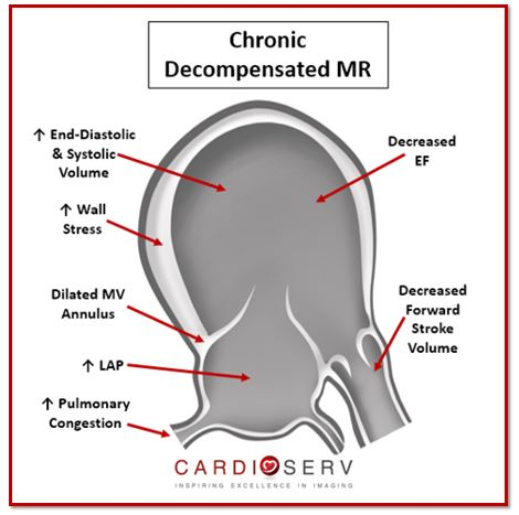 Chronic Decompensated MR Echo Sonographer View