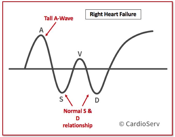 Hepatic Vein Right Heart Failure