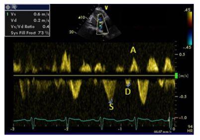 Hepatic Vein Waveform
