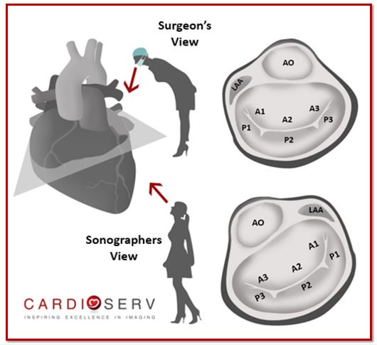 Finally… Mitral Valve Orientation Explained!