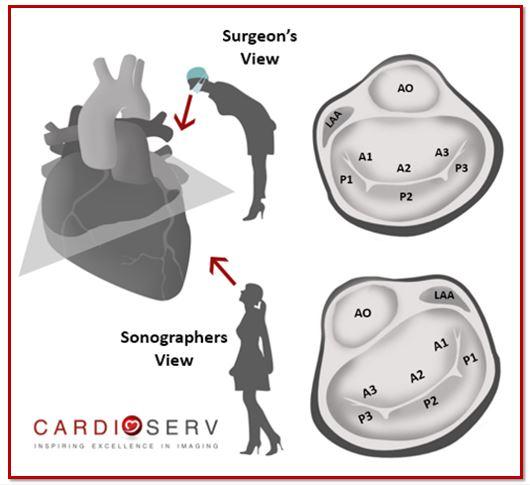 Surgeon View vs TTE View Mitral Valve