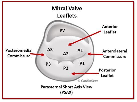 Mitral Valve Leaflets PSAX