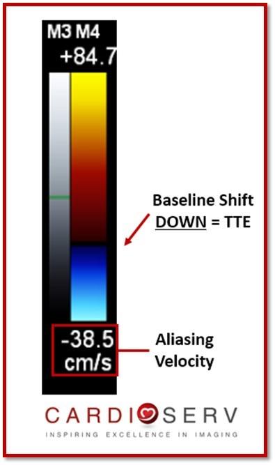 Color Doppler Baseline DOWN MR PISA TTE
