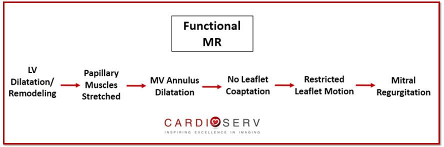 Functional Mitral Regurgitation Process Echo