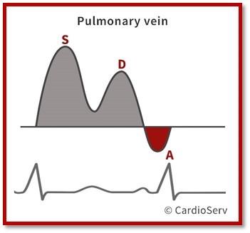 Normal Pulmonary Vein Waveform