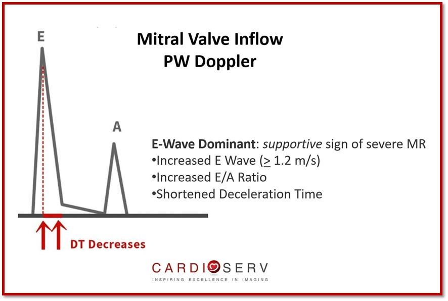 Mitral Valve PW Inflow
