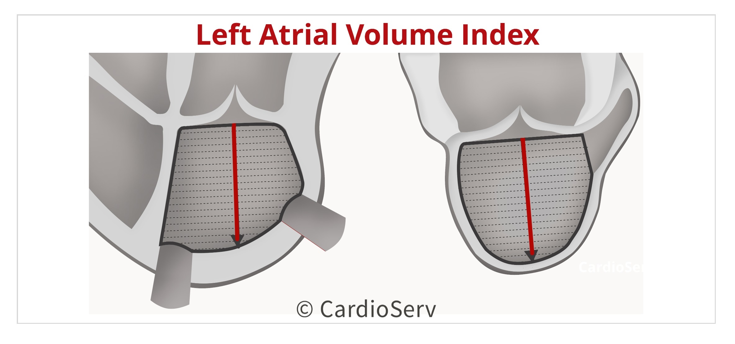 Left Atrial Volume Index