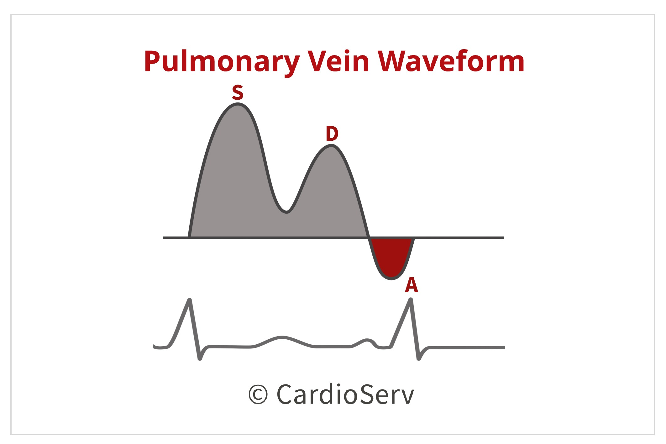 Pulmonary Vein Waveform