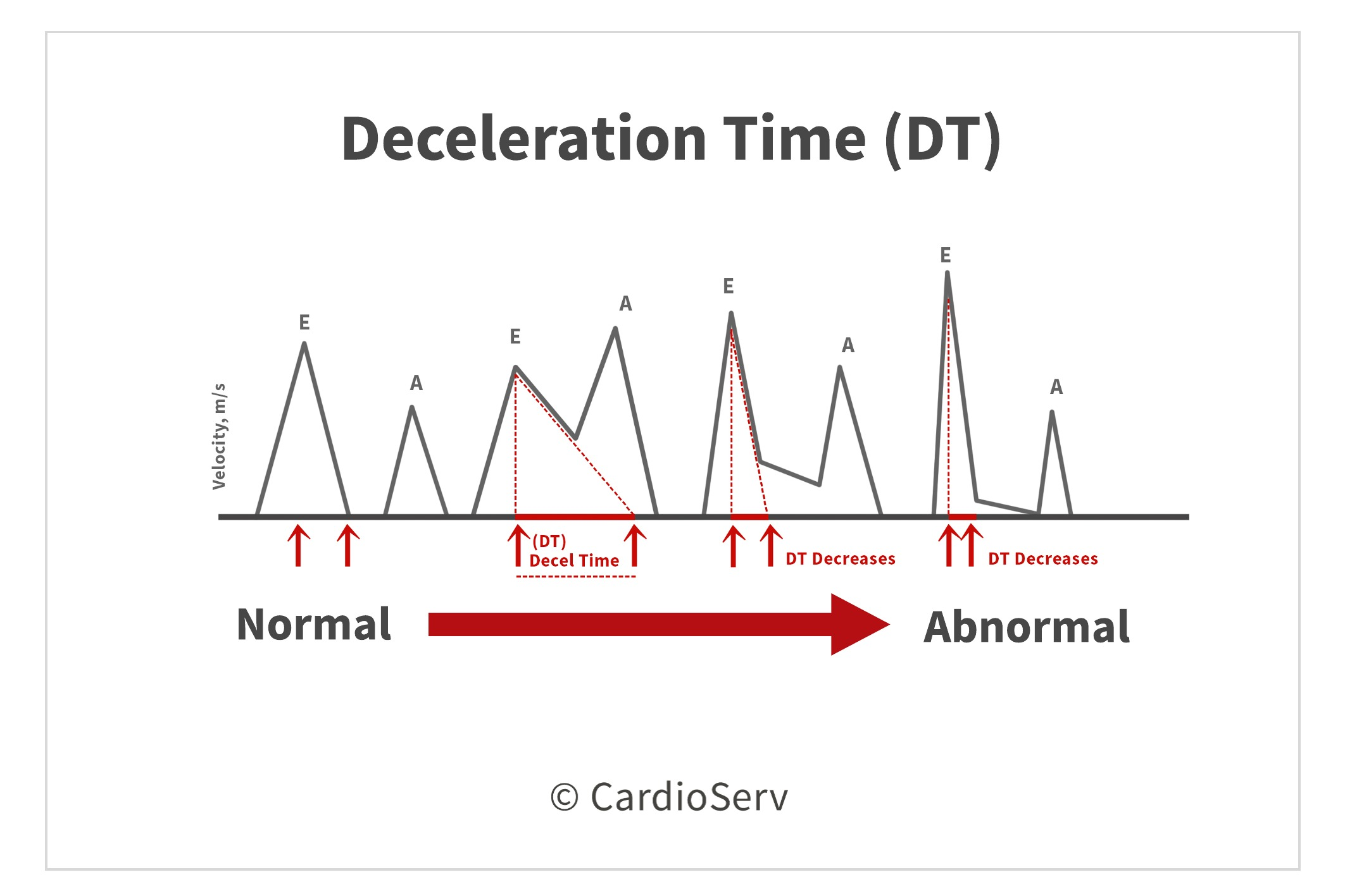 Deceleration Time DT Mitral Inflow Diastolic Function Evaluation