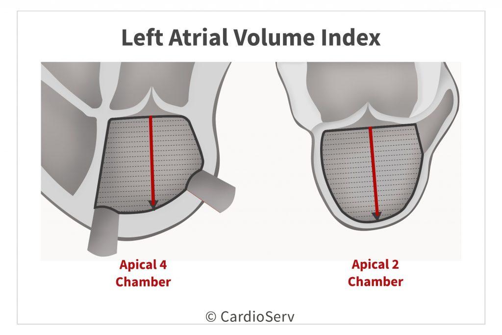 Left Atrial Volume Index in echo