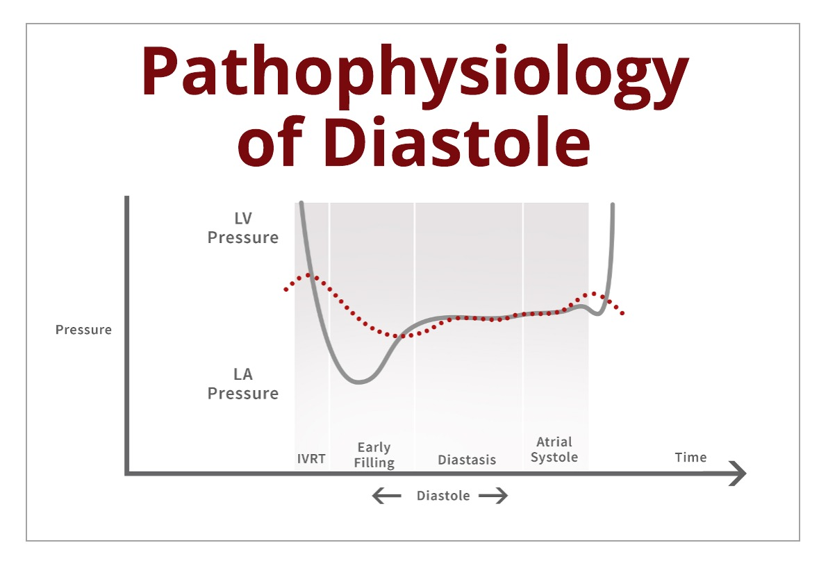 Understanding the Basics: Pathophysiology of Diastole