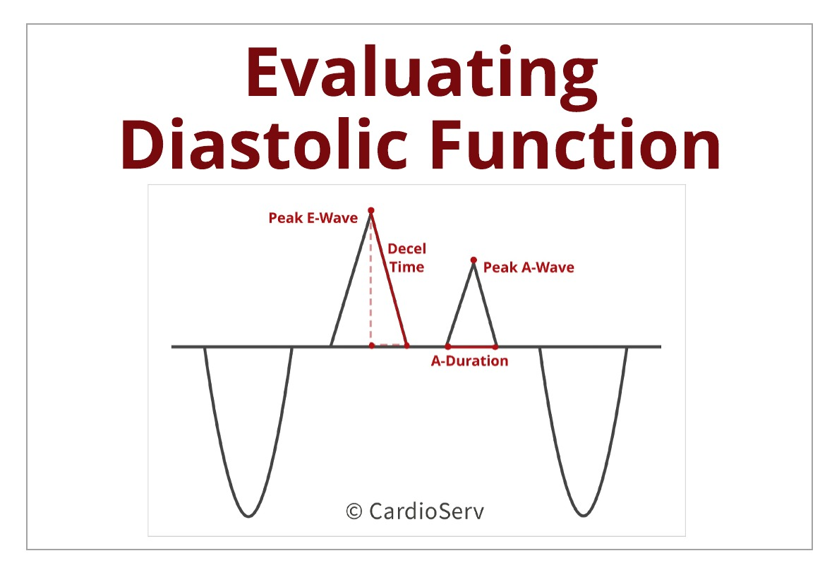 Understanding the Basics: Evaluating Diastolic Function