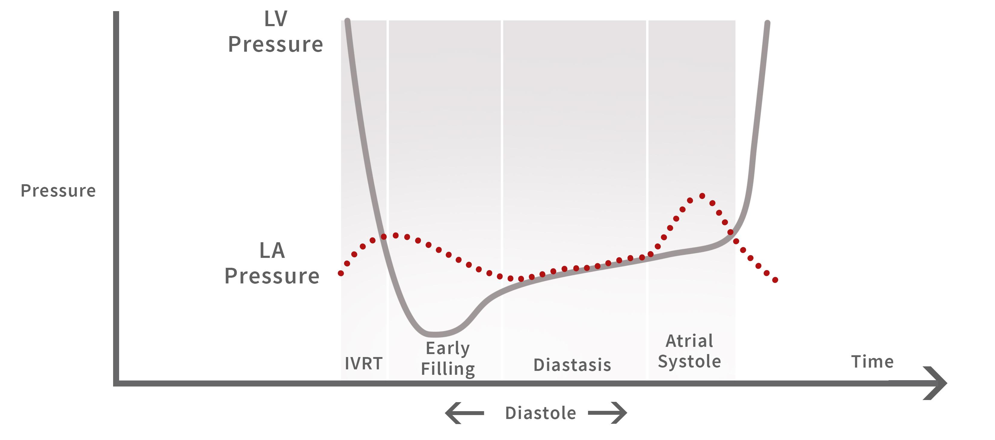 Left Ventricle Pressure & Left Atrial Pressure during Diastole