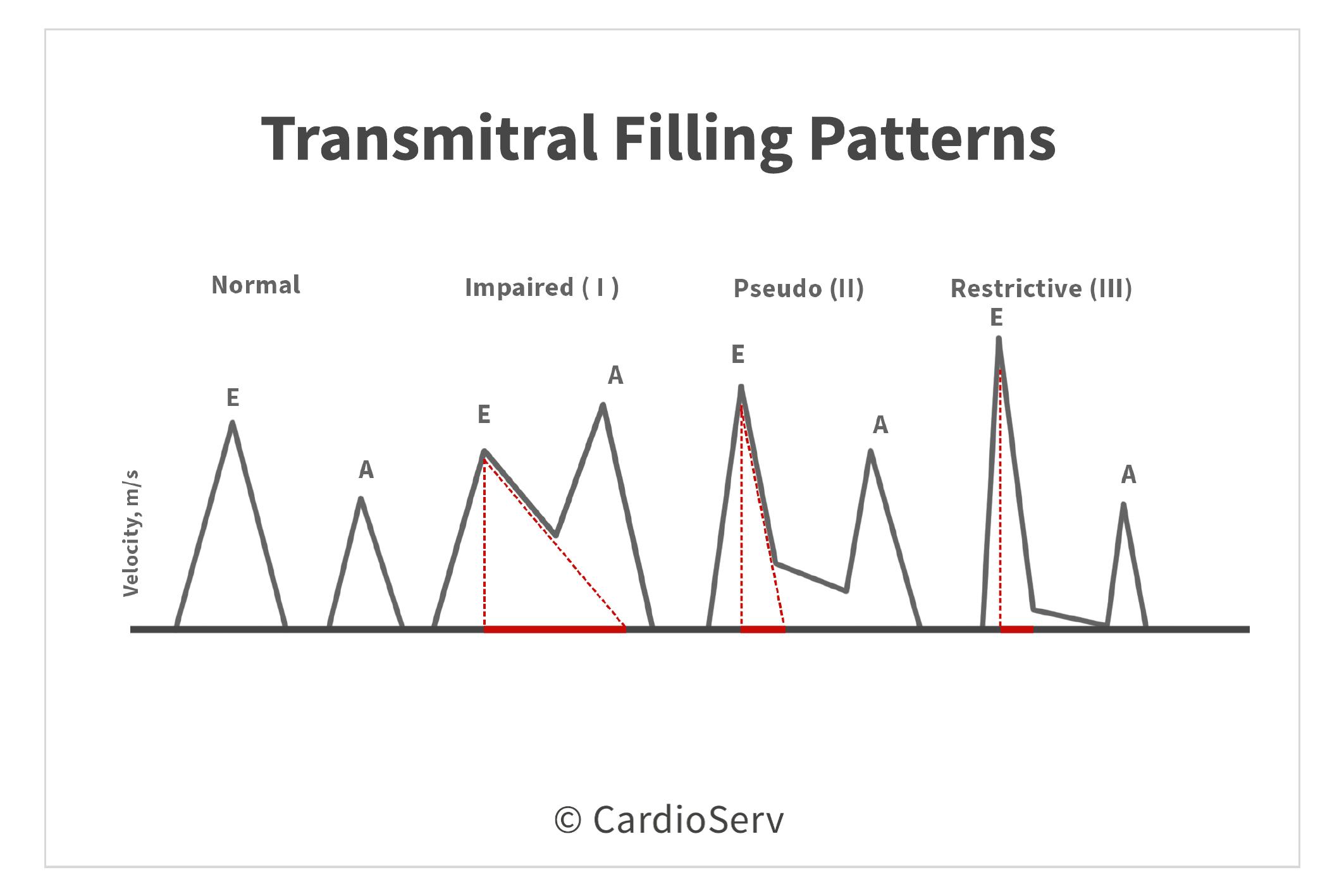 Transmitral Filling Patterns Diastolic Function