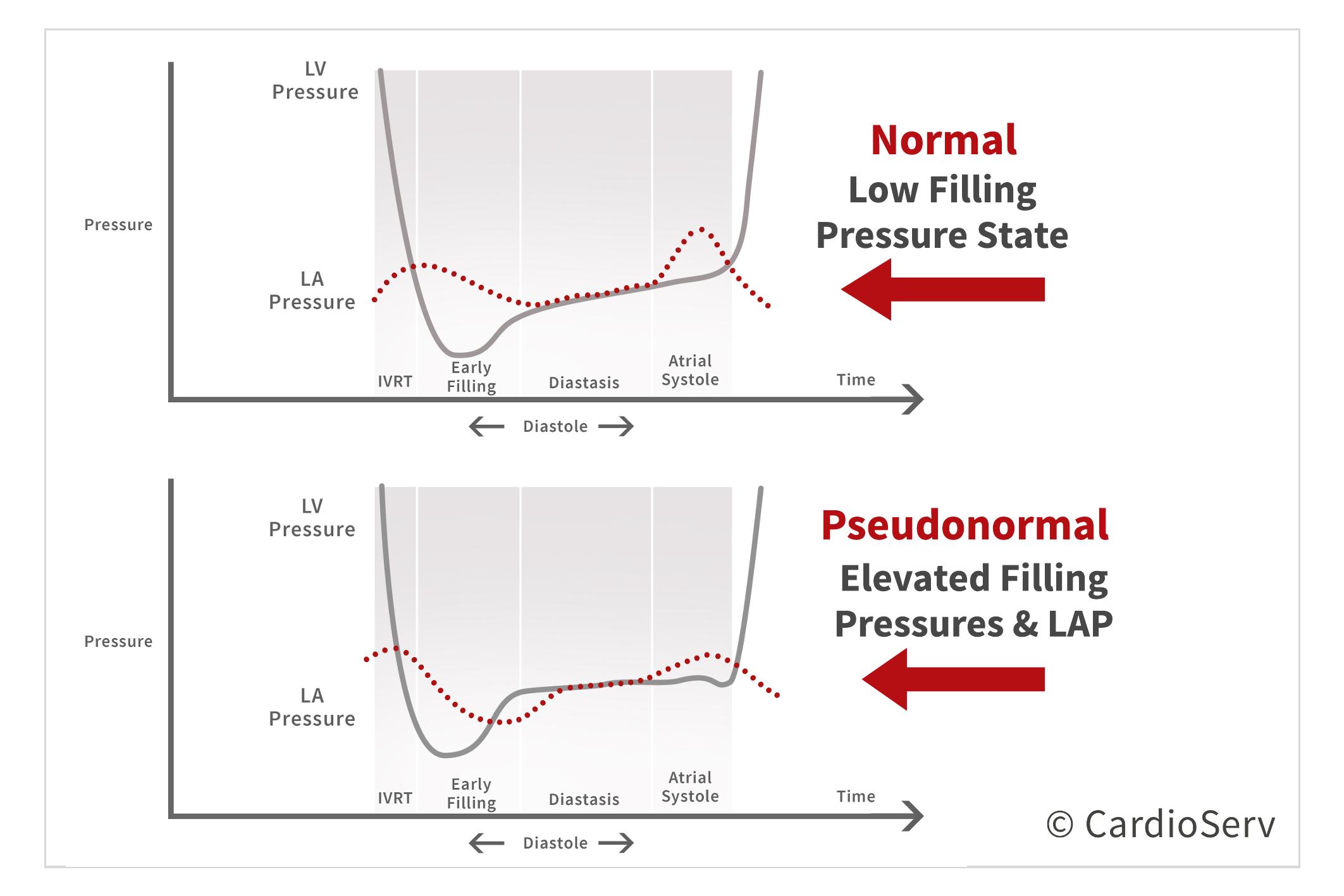 Normal vs Pseudonormal Pressure Change Left Ventricle and Left Atrium Diastolic Dysfunction