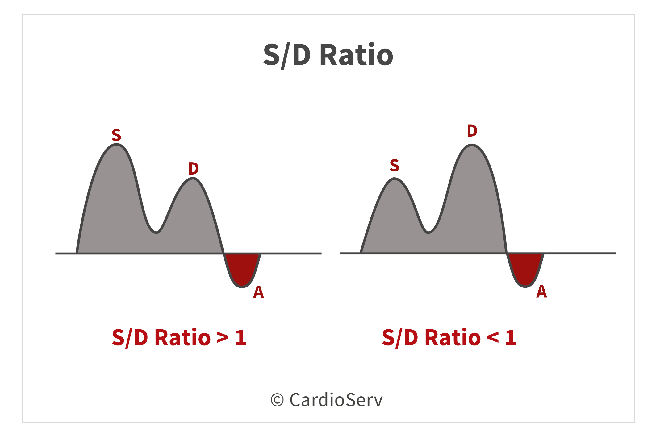 Pulmonary Vein S/D Ratio Diastolic Function