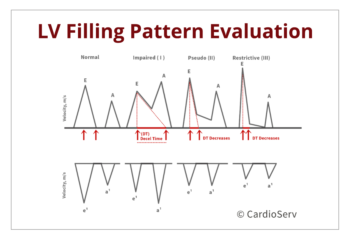 Understanding the Basics: LV Filling Patterns