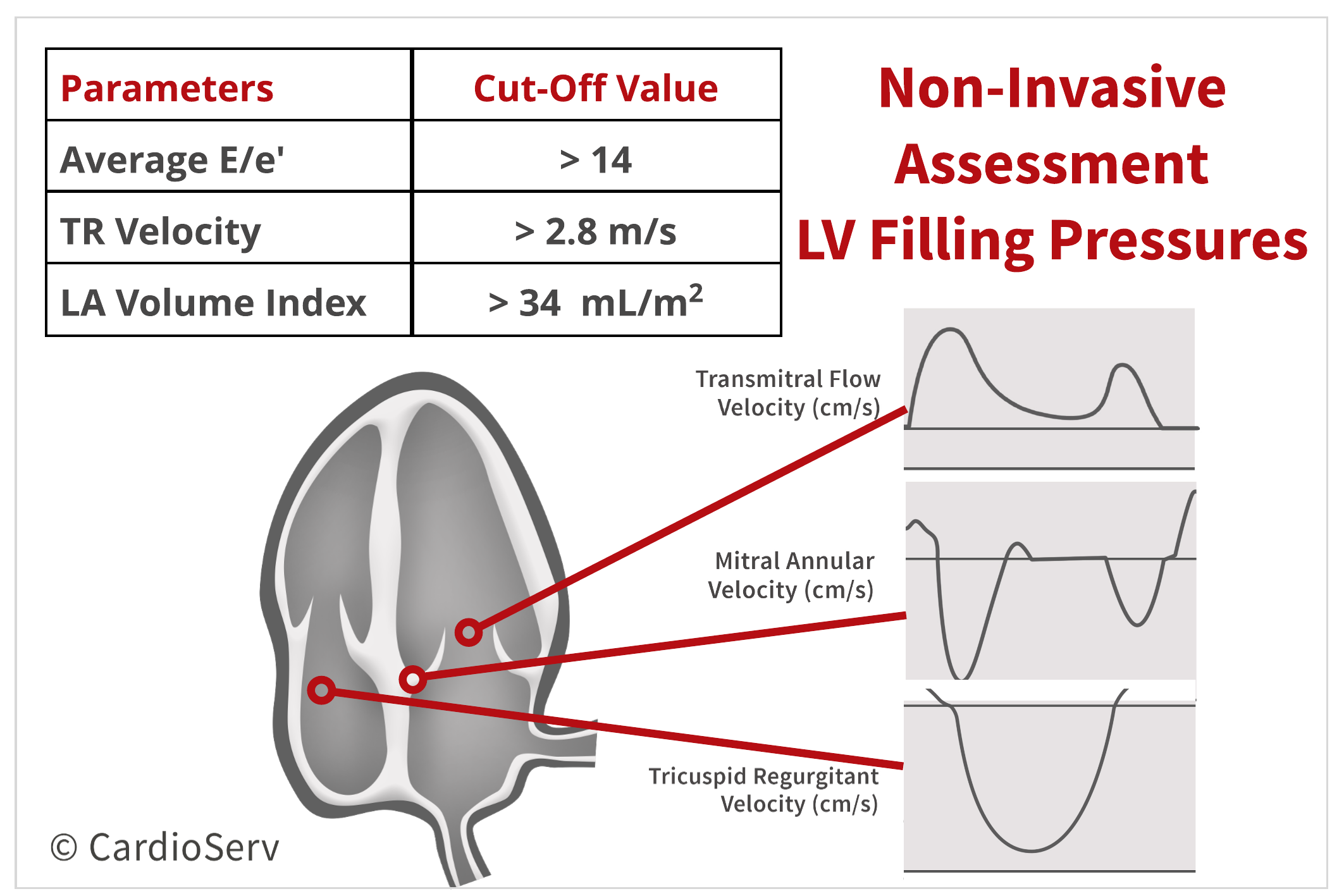 Non-Invasive LV Filling Pressures