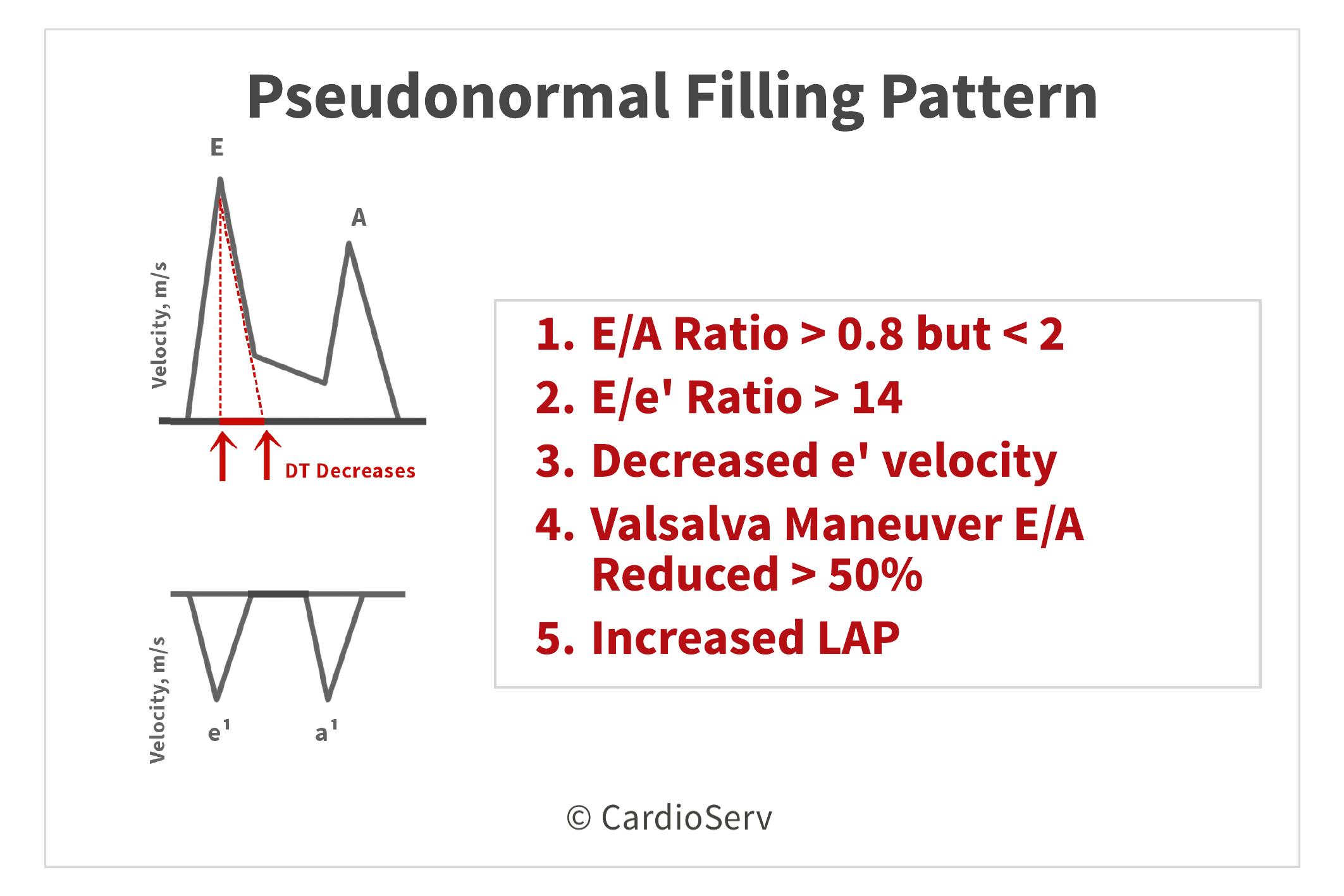Pseudonormal Grade II Diastolic Dysfunction Echo