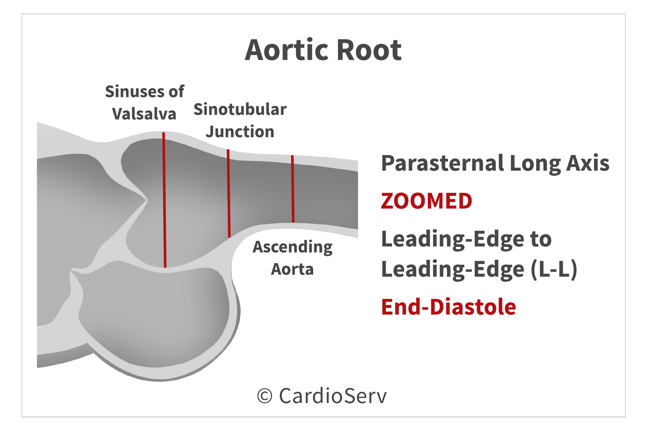 Aortic Root Segments Measurement Echo