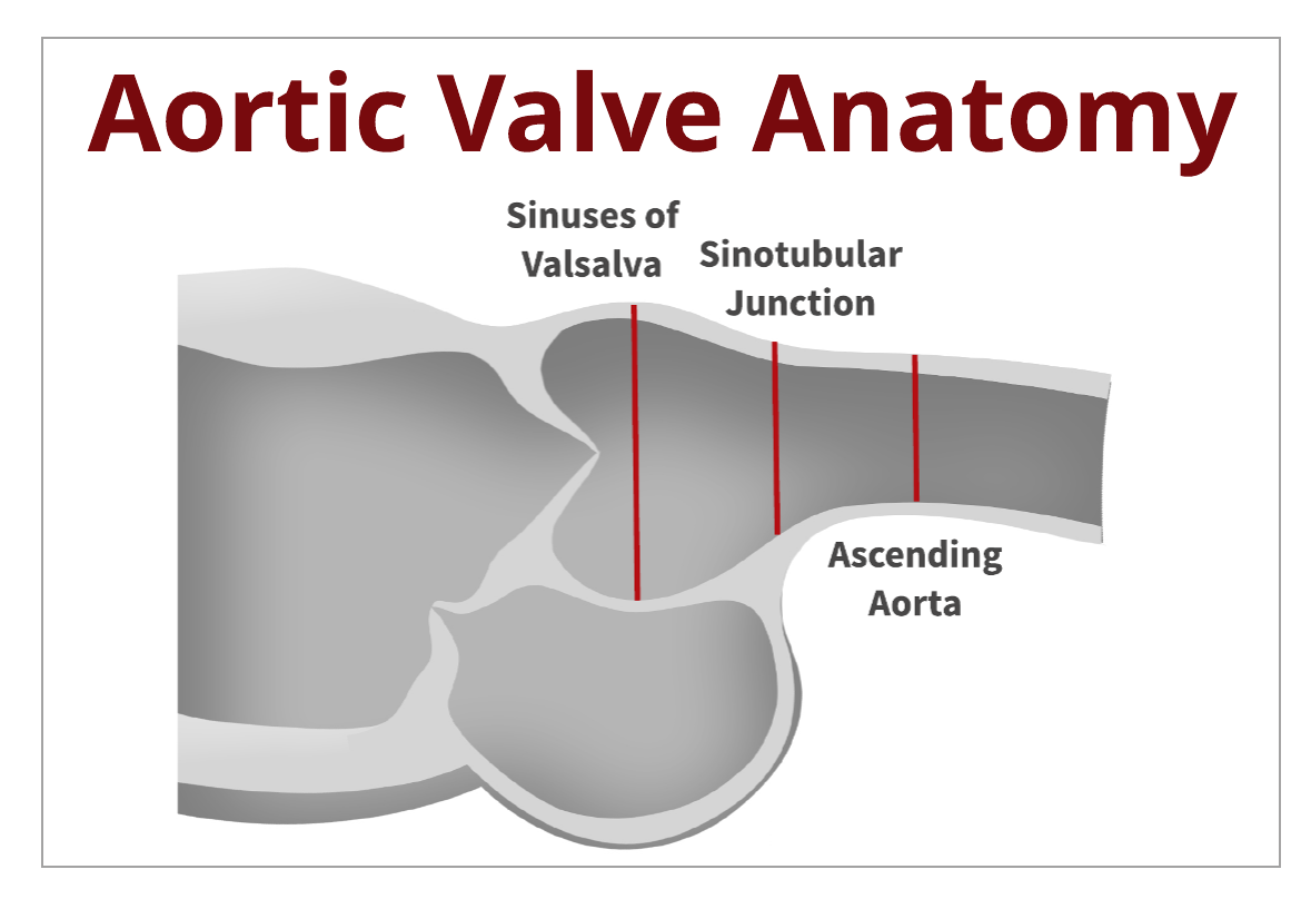 Back to the Basics: Aortic Valve Anatomy