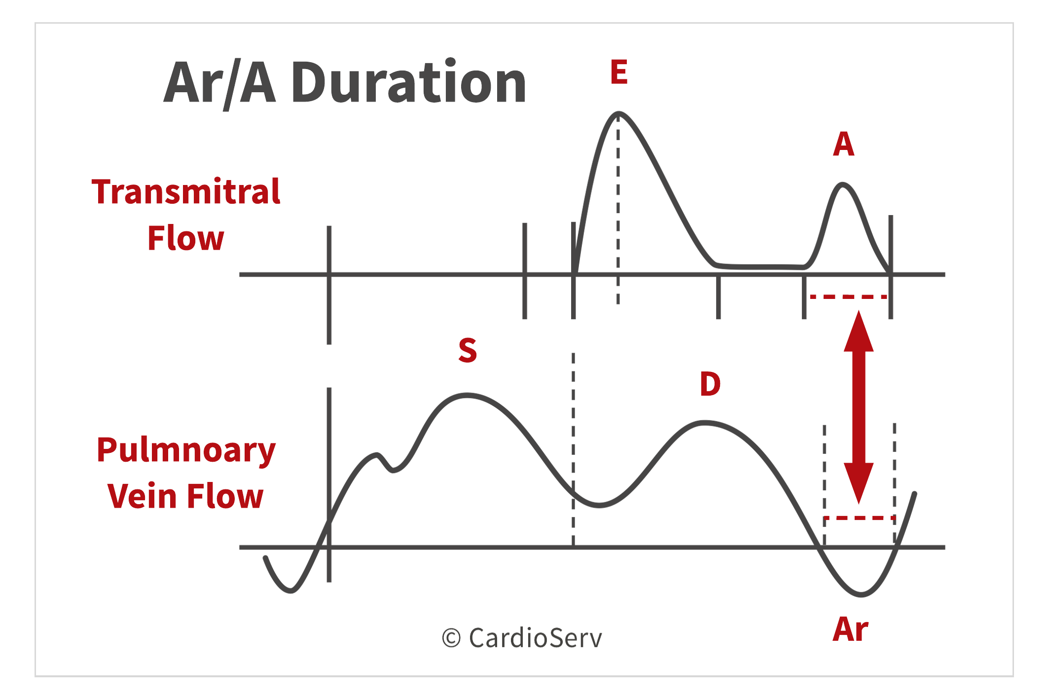 Ar/A Duration Diastolic Function Evaluation Echo