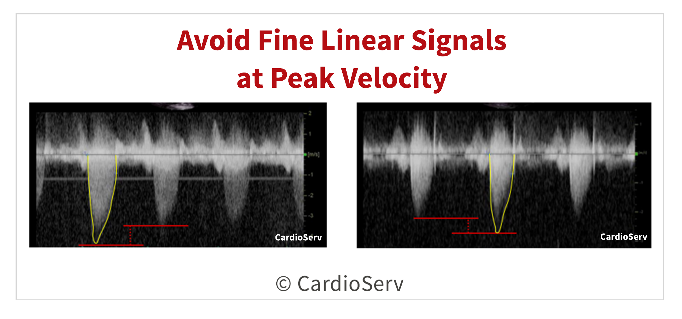 Avoid Linear Signals Aortic Valve Velocity Tracing