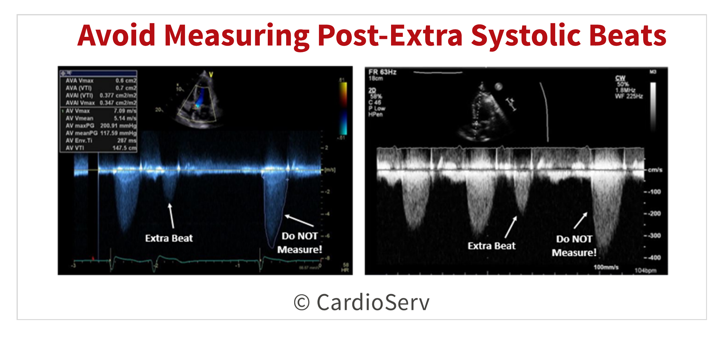 Avoid measuring post-extra systolic beats as peak AV velocity