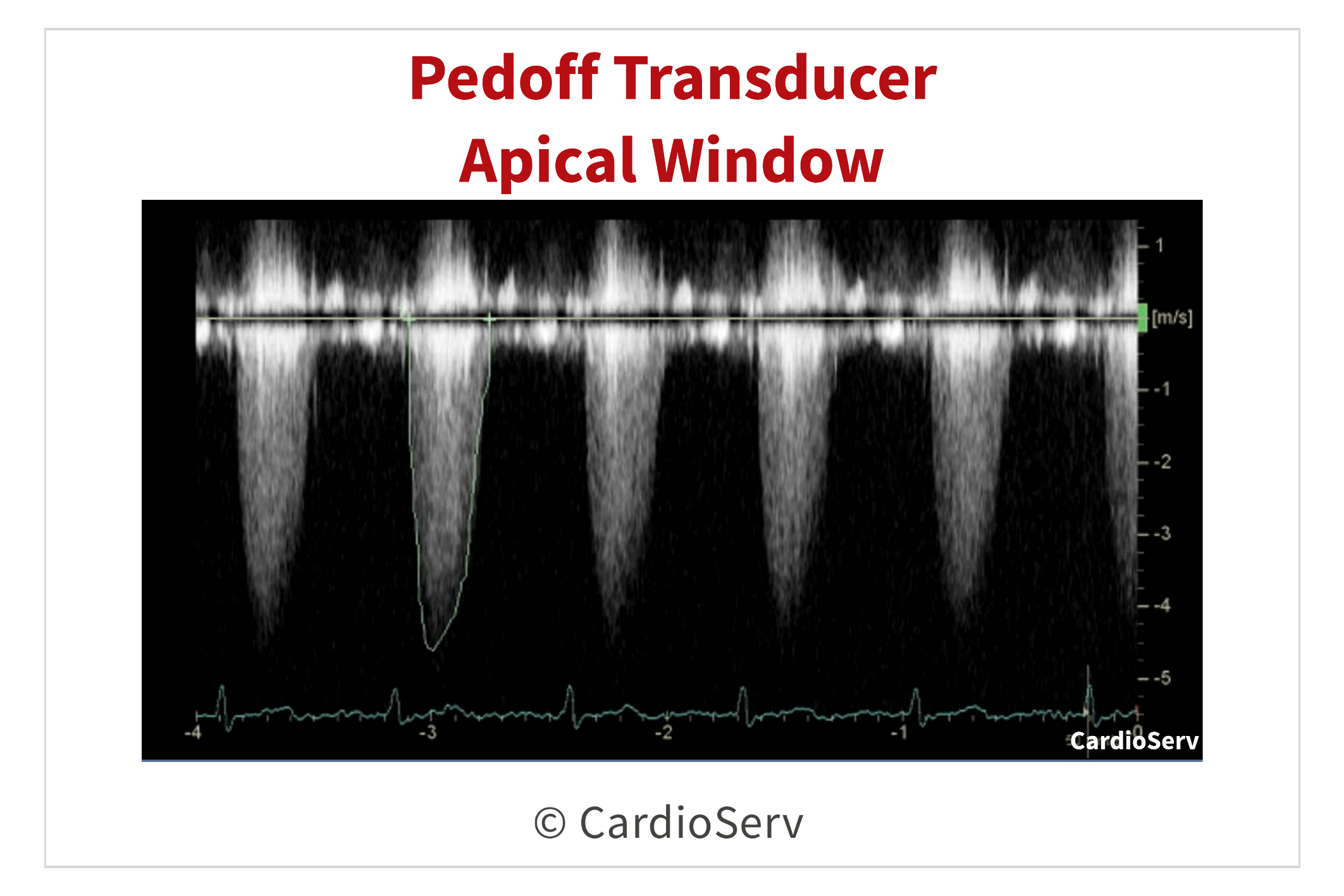 Pedoff Transducer Aortic Stenosis CW Doppler