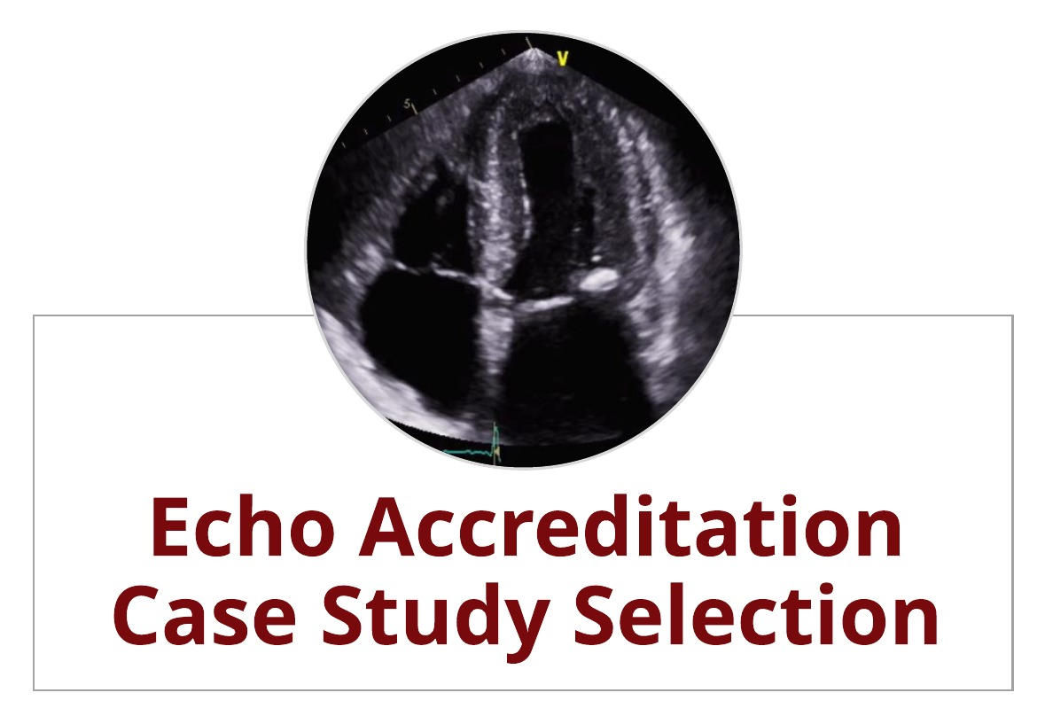 Echo Accreditation:  5 Tips for Easier Case Study Selection
