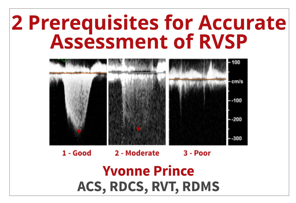 2 Ways to Properly Assess TR Jets for Accurate RVSP Calculations