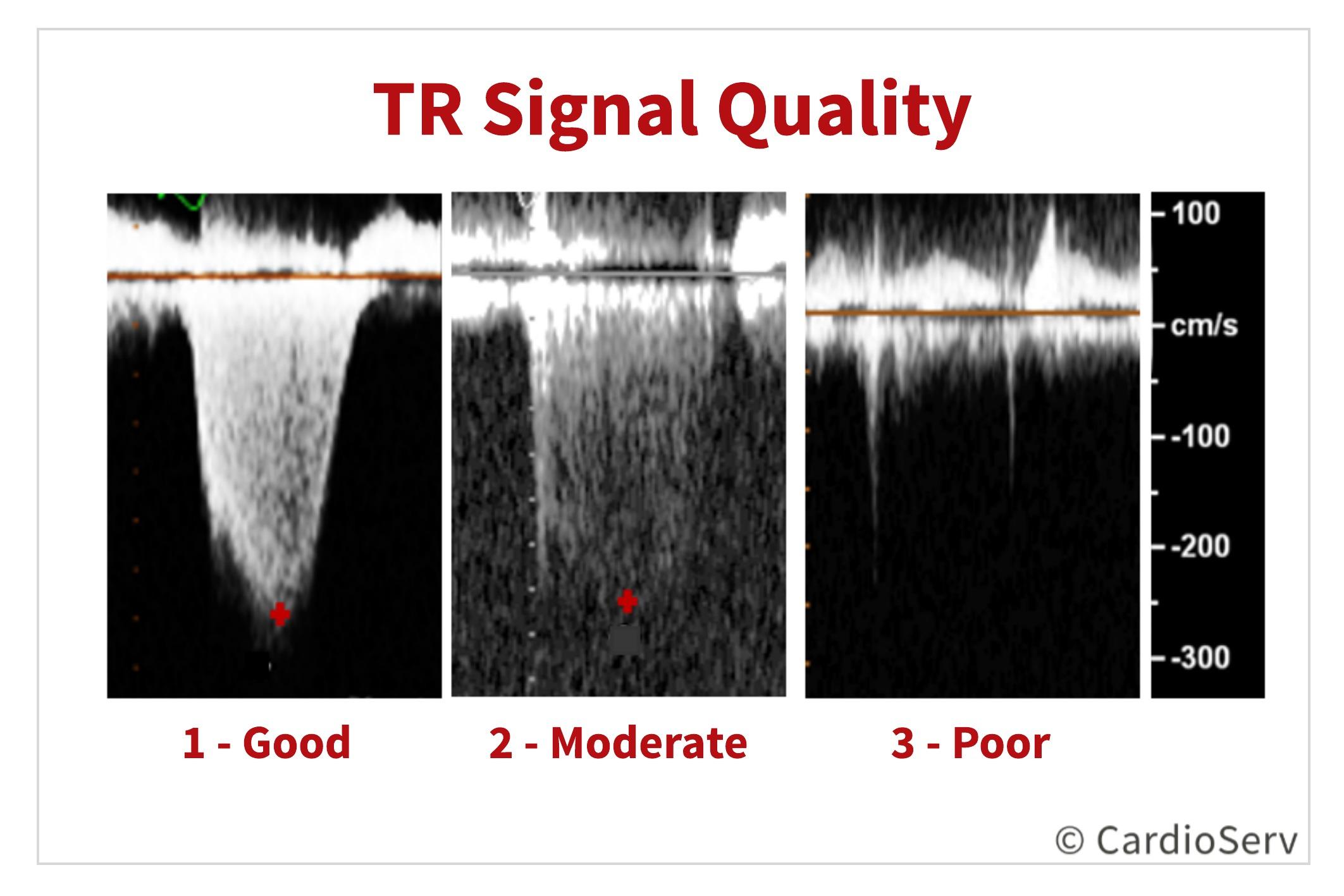 Grading Tricuspid Regurgitation TR Velocity Doppler Envelope