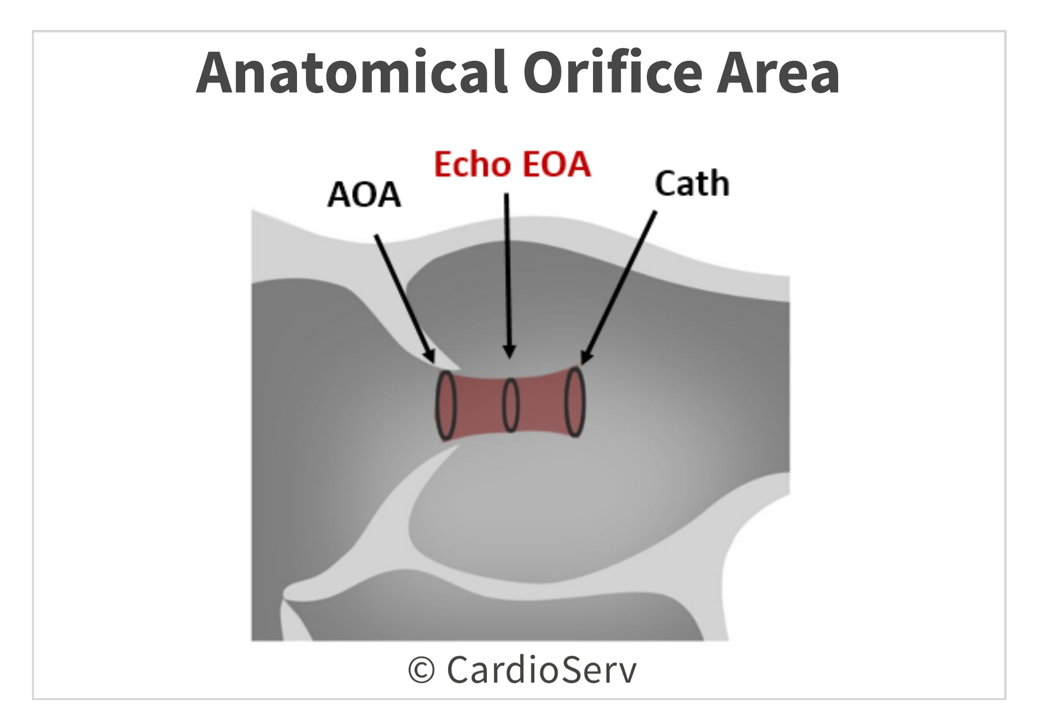 AOA Anatomical Orifice Area Aortic Valve Area AVA Planimetry Echo