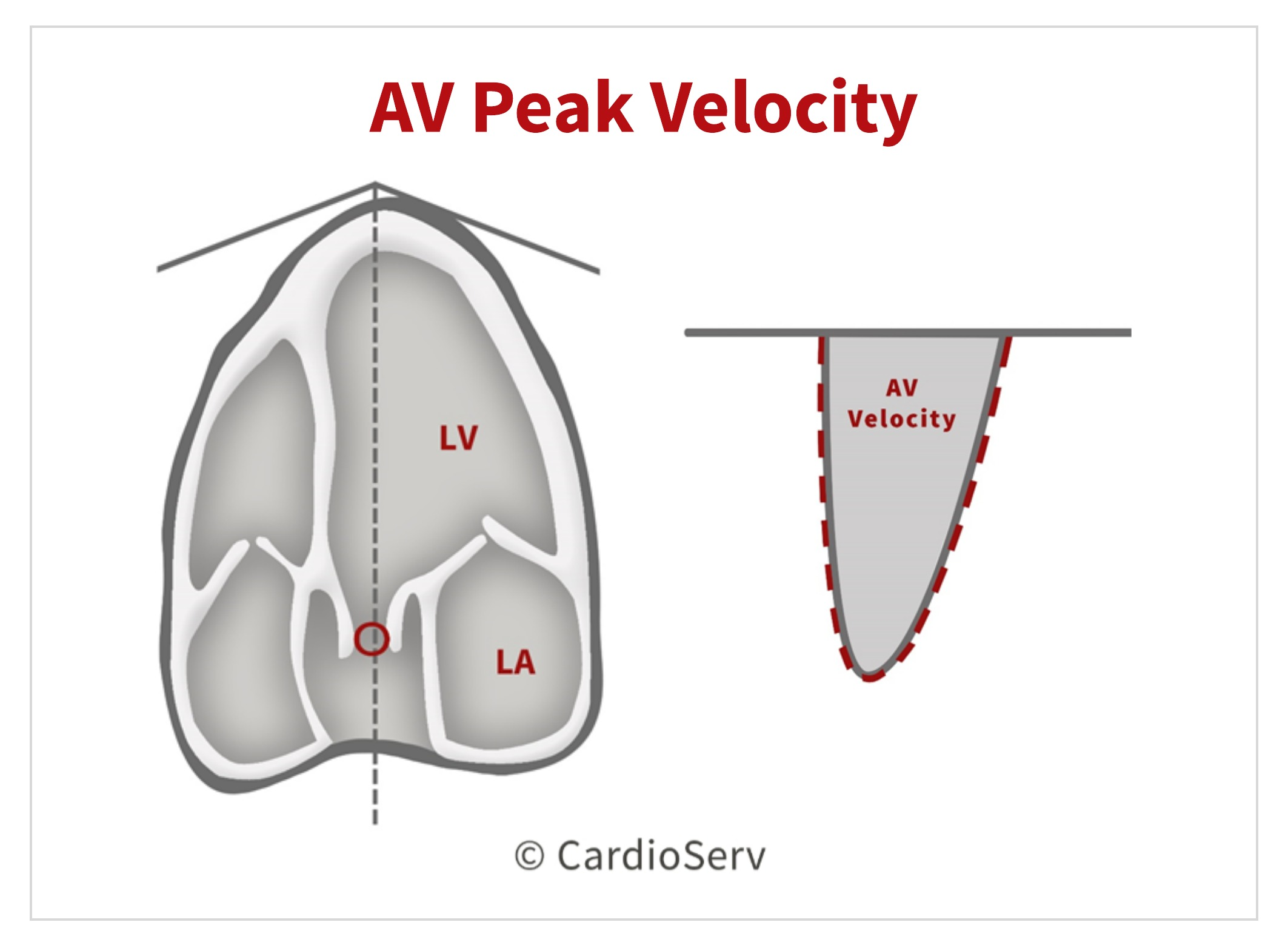 Aortic Valve Velocity