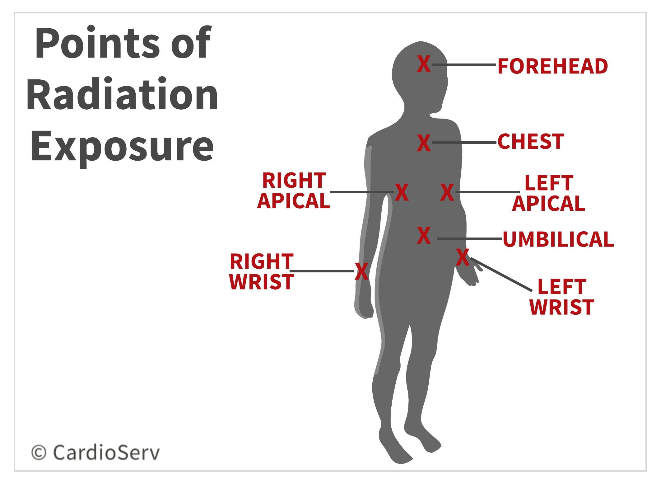 Points of Radiation Exposure to Echocardiographers Echo